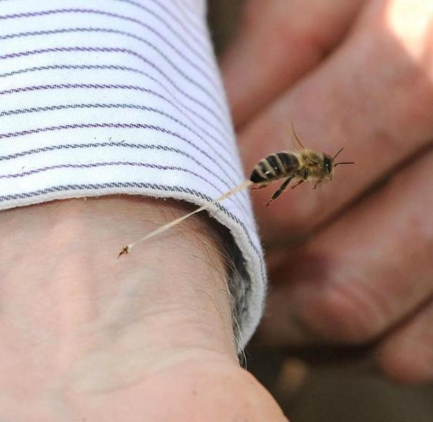 Bees sting.jpg