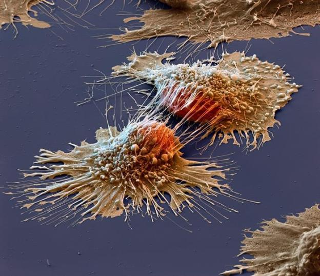 cancer cell.jpg