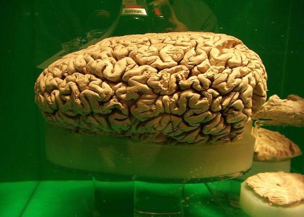 สมองวาฬสเปิร์ม